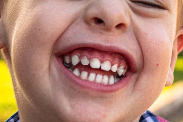 sorriso di un bambino con i denti in vista