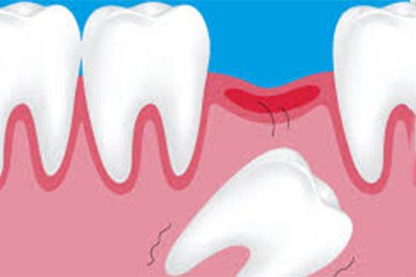 immagine che ritrae dei denti da bambino